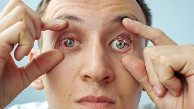 Uomo con gli occhi rossi alzando le palpebre con le dita guardando la telecamera