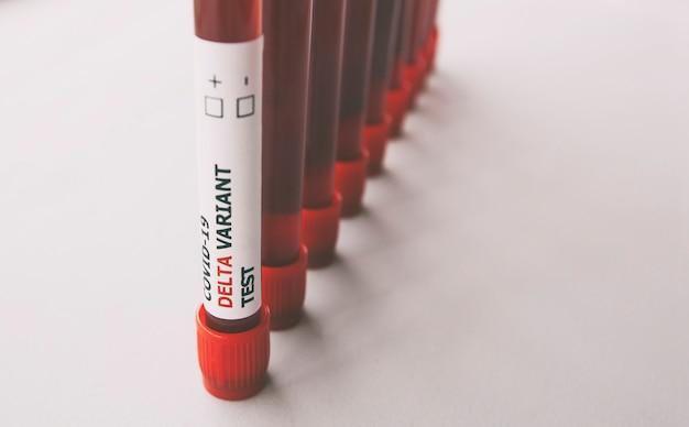 Molte provette di analisi del sangue con l'etichetta covid-19 delta variant test