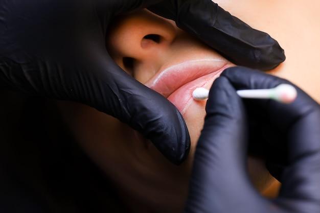 Il maestro applica l'anestesia alle labbra della modella con un batuffolo di cotone dopo aver passato la macchinetta del tatuaggio