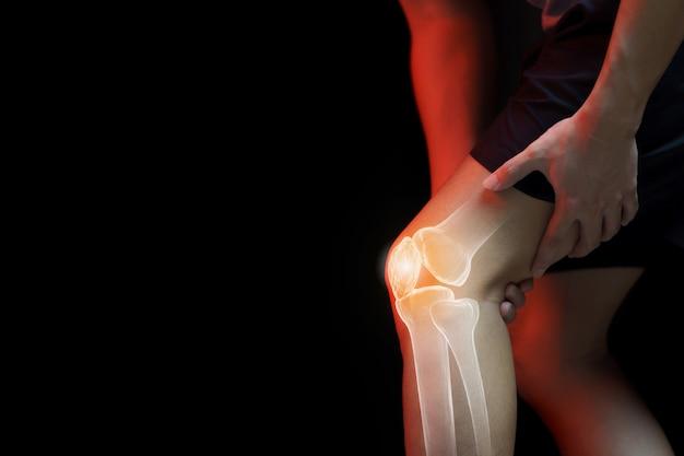 Concetto medico, uomo che soffre di dolori al ginocchio - radiografia dello scheletro,