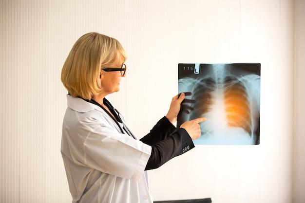 Medico che controlla il film d'esame di raggi x del torace del paziente all'ospedale del reparto. concetto di corona virus covid-19.