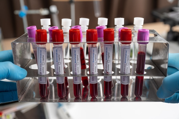 Attrezzature mediche test del campione di sangue in laboratorio medico