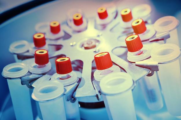 Centrifuga per laboratorio medico con provette con sangue