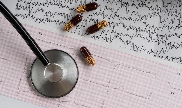 Stetoscopio medico con pillole e cardiogramma su sfondo chiaro. vista dall'alto