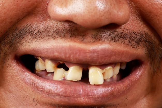 Gli uomini hanno problemi di salute orale.