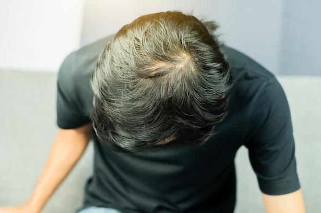 Gli uomini hanno problemi di caduta dei capelli, diradamento dei capelli, calvizie.