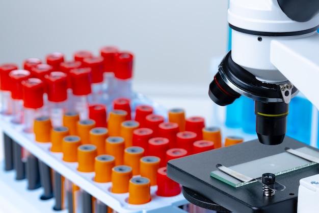 Microscopio con provette di campioni di sangue in laboratorio si chiuda