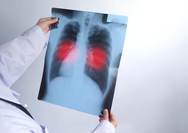 Di mezza età di una dottoressa asiatica in piedi e con in mano una pellicola a raggi x o una radiografia che guarda