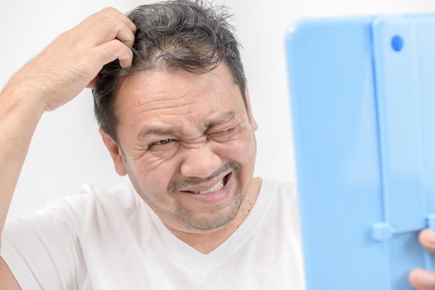 Un uomo di mezza età brilla allo specchio e usa le mani per grattarsi i capelli sul cuoio capelluto. problema di testa irritata e concetto di assistenza sanitaria