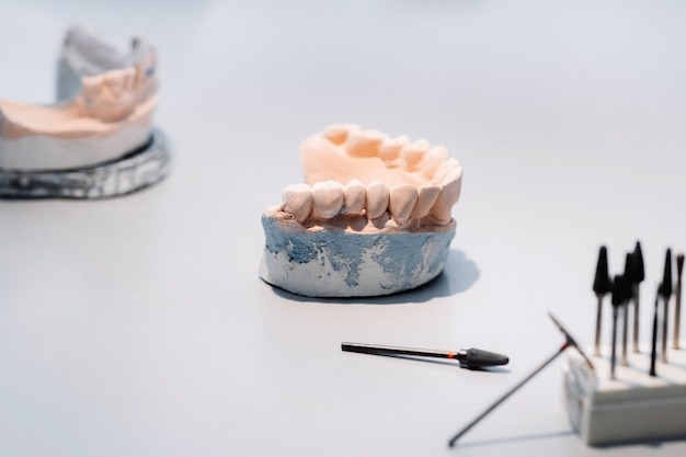 Modello di denti in gesso della mascella per odontotecnici