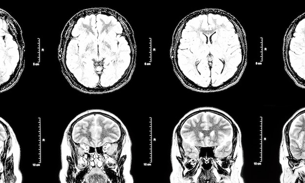 Mri immagine a risonanza magnetica del cervello e della testa umani.