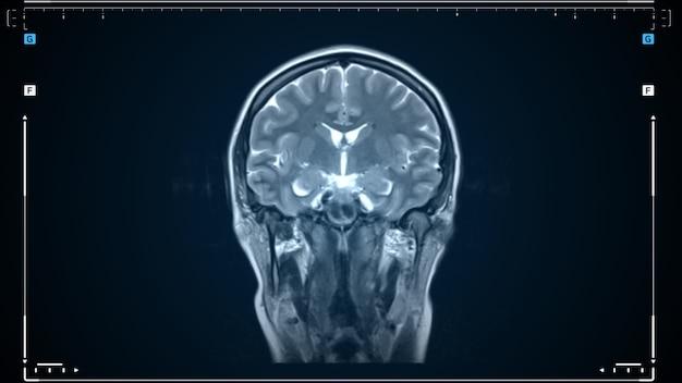 Scansione mri di un cervello umano in movimento. scansione dell'immagine di risonanza magnetica cerebrale. strumento medico diagnostico.