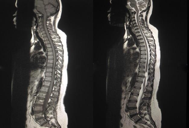 Mri. colonna vertebrale toracica 2 mostra che mostra la massa extramidollare intradurale