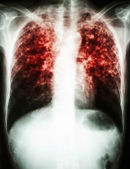 Infezione da mycobacterium tuberculosis (tubercolosi polmonare)
