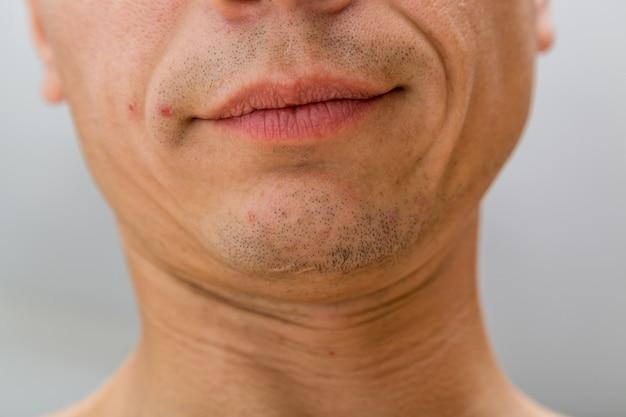 Collo umano mento e labbra sorriso pelle problematica