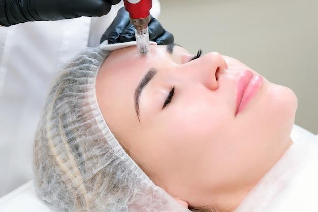 Mesoterapia con ago. il cosmetologo esegue la mesoterapia con ago sul viso di una donna. bella donna che riceve un trattamento di ringiovanimento con microneedling. sollevamento dell'ago