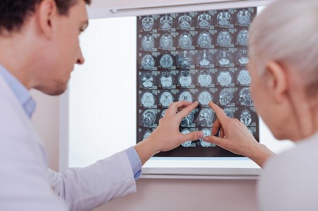 Bella donna dai capelli grigi invecchiata guardando l'immagine a raggi x del cervello e indicandola mentre si trovava con il suo medico