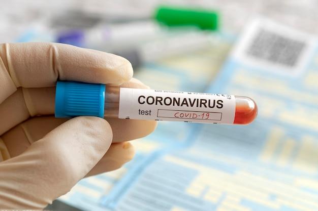 Infermiera in possesso di un risultato di analisi del sangue positivo per il nuovo coronavirus in rapida diffusione, originario di wuhan, in cina. scritta sull'etichetta test coronavirus covid-19,