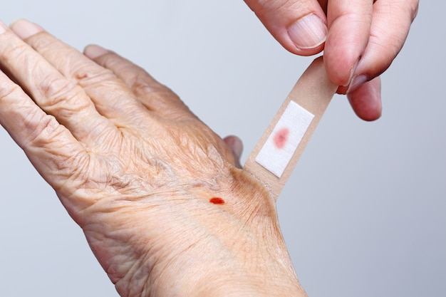 Infermiera che tira il bendaggio adesivo fuori dalla mano della donna anziana
