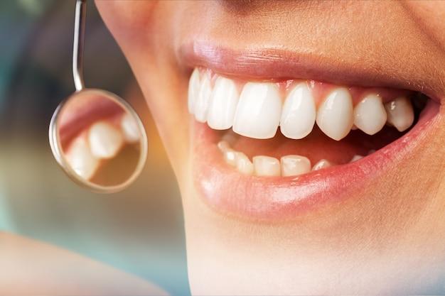 Odontoiatria parodontale attraente adolescente bella ragazza sbiancante