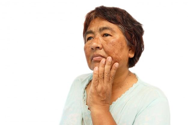 Vecchia donna rurale con difetto