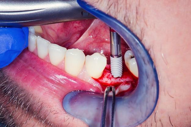 Osso mandibolare aperto dopo l'incisione chirurgica delle gengive con un bisturi prima dell'impianto dentale