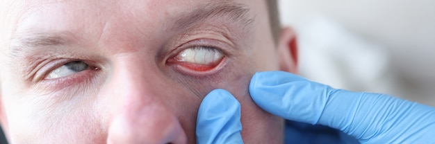 Un oftalmologo esamina l'occhio del paziente quali malattie sono indicate dai sintomi oculari