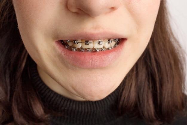 Trattamento ortodontico. concetto di cure odontoiatriche. adolescente sorridente con le parentesi graffe. primo piano delle parentesi graffe metalliche sui denti. foto di alta qualità