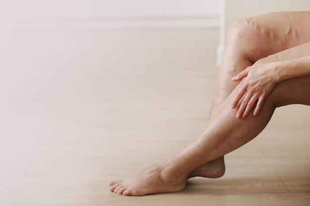 Varicose dolorose e vene varicose sulle gambe della donna attiva, che si auto-aiutano a superare il dolore. malattia vascolare, problemi di vene varicose, concetto di vita attiva.