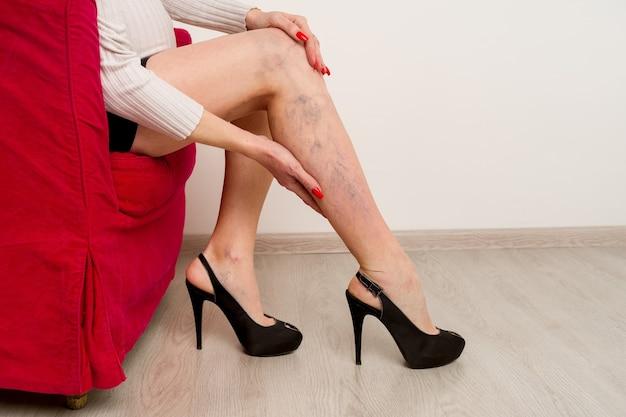 Varici dolorose e vene varicose sulle gambe femminili. donna che massaggia la gamba stanca in ufficio
