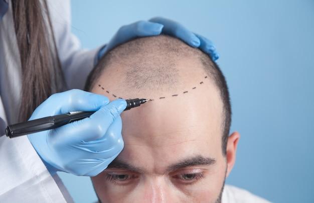 Paziente affetto da perdita di capelli in consultazione con un medico. medico che utilizza un pennarello per la pelle