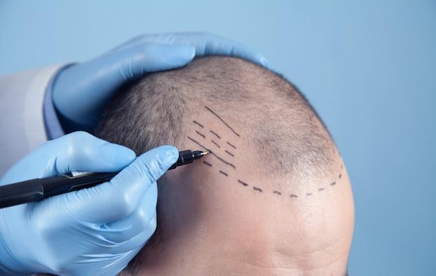 Paziente che soffre di perdita di capelli in consultazione con un medico. dottore che usa un pennarello cutaneo
