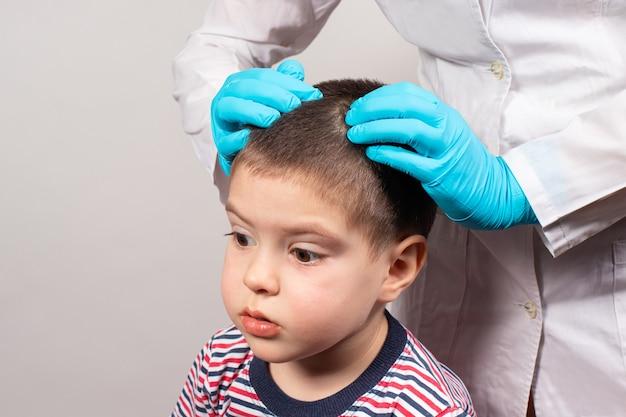 Il pediatra nei guanti controllerà la presenza di pidocchi e lendini in un bambino.