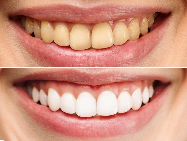 Il sorriso perfetto dei denti sani di una donna che sbianca i denti della clinica odontoiatrica, l'immagine del paziente simboleggia l'orale