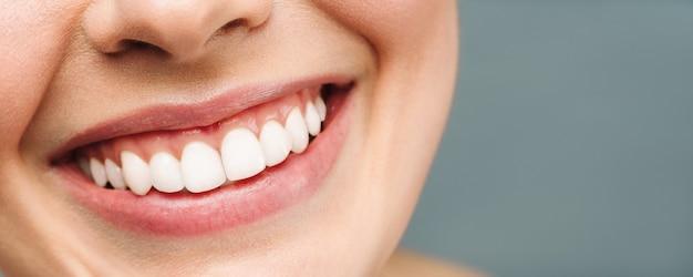 Il sorriso perfetto dei denti sani di una giovane donna che sbianca i denti della clinica odontoiatrica simboleggia l'immagine del paziente