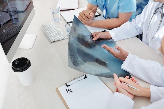 Medici che esaminano i raggi x dei polmoni