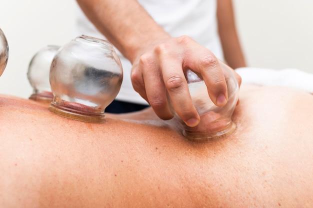Fisioterapista utilizzando il metodo di coppettazione sulla schiena del paziente femminile