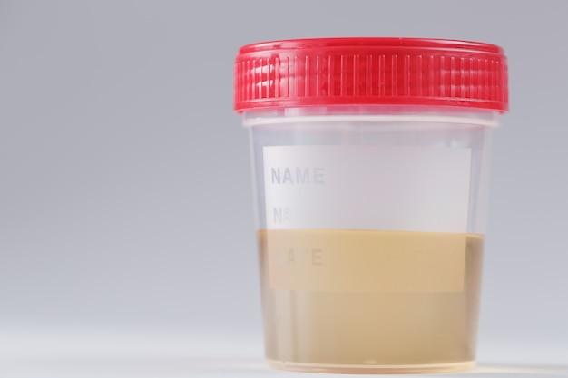 Contenitore in plastica con analisi delle urine gialle per rilevare malattie