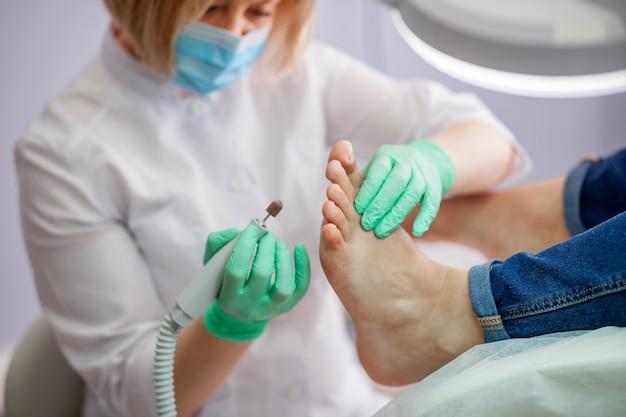 Il podologo tratta il piede usando la fresatrice.