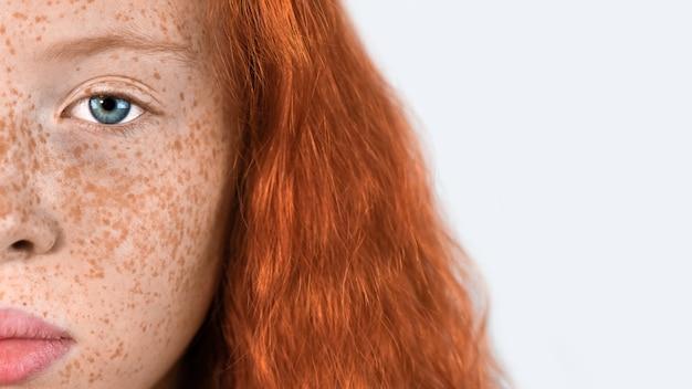 Ritratto di una ragazza dai capelli rossi con tante lentiggini sul viso e occhi azzurri su fondo bianco