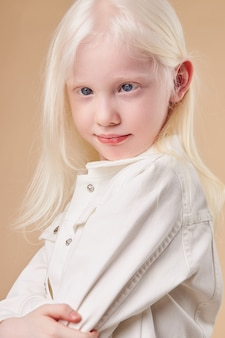 Ritratto della ragazza sorridente del bambino dell'albino isolata