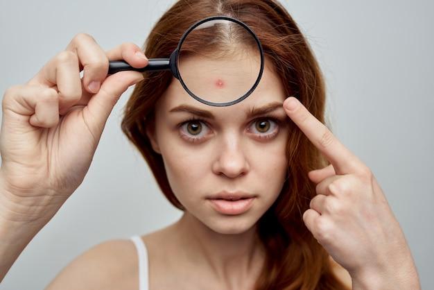 Ritratto di donna con problemi di pelle
