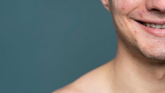 Ritratto di giovane uomo con acne e copia spazio