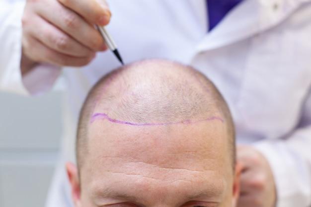 Preparazione per la chirurgia del trapianto di capelli
