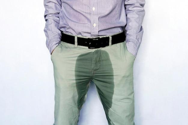 Problemi con la vescica. il concetto di salute degli uomini. giovane in pantaloni leggeri con macchia di urina bagnata.