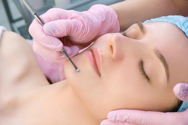 Procedura per pulire la pelle del viso con un apparecchio in acciaio con un cucchiaio uno da punti neri e acne.