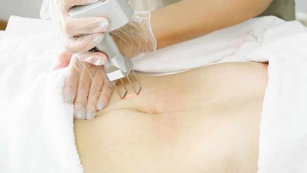 L'operatore professionale del salone di bellezza effettua la depilazione laser