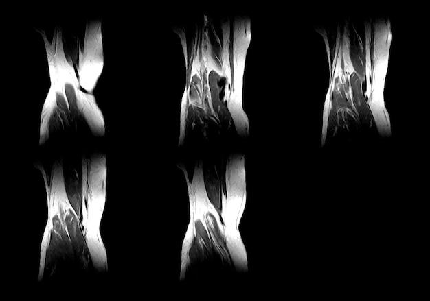 Immagini professionali di mri e ct scan xray del medico