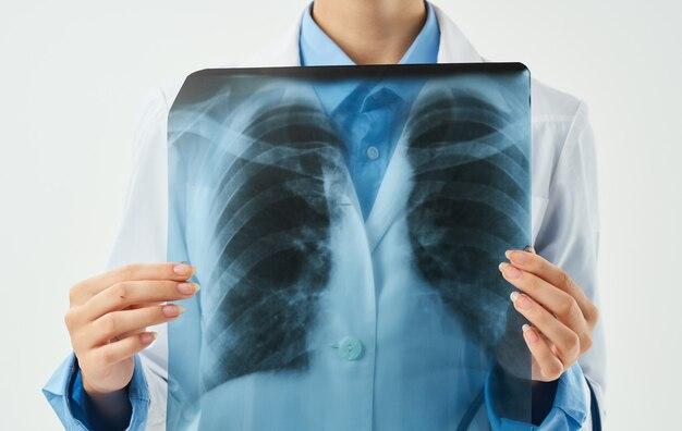Donna di medico professionista con radiografia del torace nelle mani.