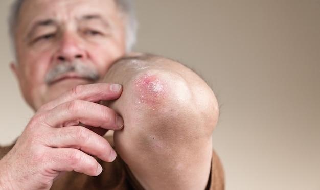 Psoriasi sul gomito. primo piano dermatite sulla pelle malata eruzione cutanea allergica dermatite eczema del paziente dermatite atopica sintomo pelle dettaglio texture, concetto di fungo dermatologia, trattamento fungine e fungine